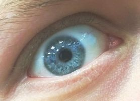 My Friend's Eye by Issabelth
