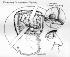 Craniotomy for Aneurysm clipping by marcgosselin