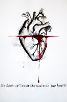 Scars on our hearts by ShyyBoyy
