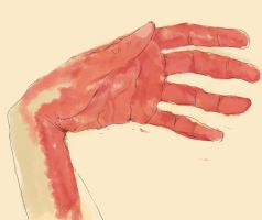 Hand by CHSD