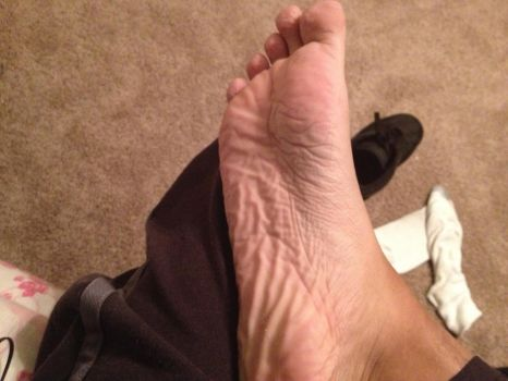 My wrinkly sole by MrSnurf