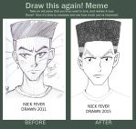 Nick Fever Before And After by Nigzblackman