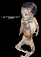 foetus 1-1 by LAUTREAMONTS