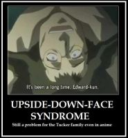 Upside down face syndrome by mezza-muggles