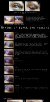 Walkthrough Black eye healing by Guirnou