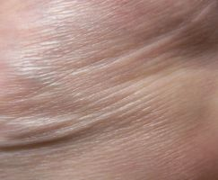 skin_texture_1 by pebe1234