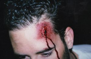'Jared's' head wound pre-blood by bathory-babe