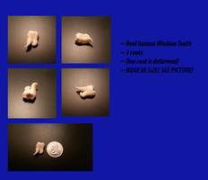 Real Human Monster Wisdom Tooth - For SALE by PinkCupcakeAddict