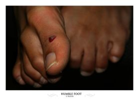 The Humble Foot is bleeding by lightronin