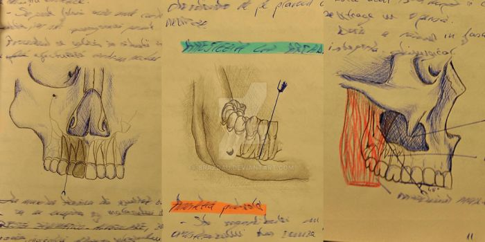Lecture sketch by Brazdau
