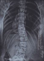 X-Ray my backbone by Marcysiabush